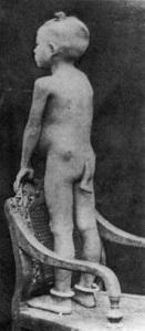 Paciente con malformación, cola vestiginal