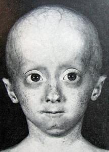 Niño con síndrome de progeria