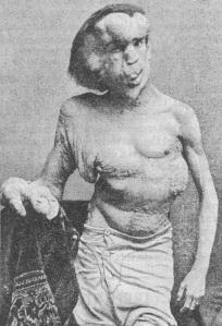 Joseph Merrick, hacia 1886. Afectado por Síndrome de Proteus