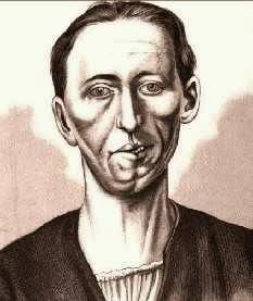 Retrato de un caso de Síndrome de Moebius